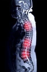 MRI whole spine screening for diagnosis spinal cord compression.