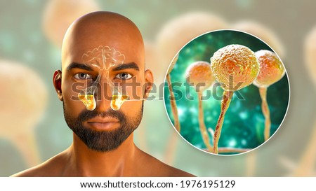Mucor fungi as a cause of sinusitis, 3D illustration. Inflammation of maxillary sinuses and close-up view of fungi Mucor. Mucormycosis, Covid-19 complication, sinusitis in immunocompromised patients Сток-фото ©