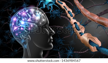 Multiple sclerosis nerve disorder and damaged myelin or MS autoimmune disease with healthy nerve with exposed fibre with scarred cell sheath loss with 3D illustration elements.