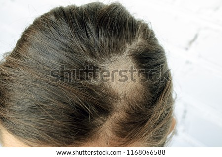 Mycosis of the scalp in the girl. Mycosis, ringworm in the hair of the girl. Shaved part of the head for the treatment of mycosis, depriving.