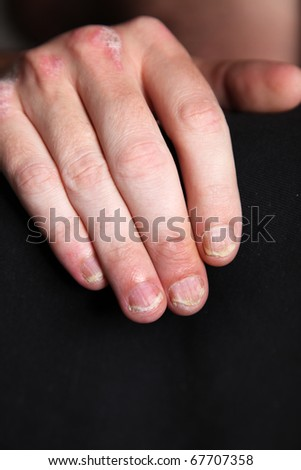 Nahaufnahme-Severe psoriasis - psoriasis of the fingernails and the hand - close up