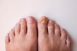 Nail fungus on legs. Nail disease.