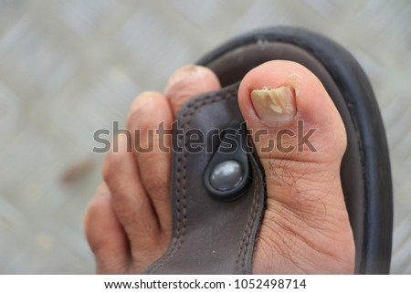 Nail fungus on nails of male's foot with sandals