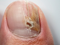 Nail infections caused by fungi such as: onychomycosis also known as tinea unguium. Thumb infection. Caused by dermatophytes and yeasts and for the concomitant antibacterial activity