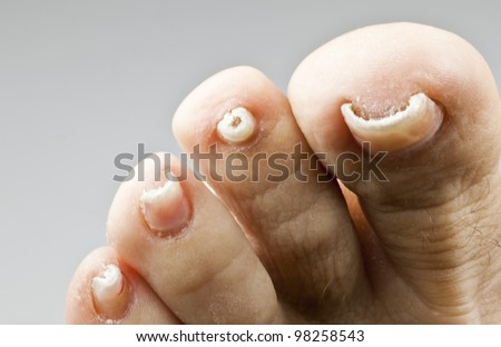 Nails with fungal disease