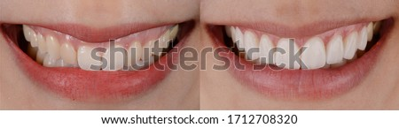 Natural look of smile makeover with dental ceramic veneers treatment, present of clean, props, youth and white teeth smile. Before and after close up smile.