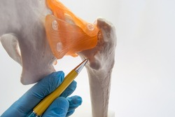 Neck of femur (hip) - a place of frequent fracture of femur concept photo. Doctor of orthopedic surgery indicates on neck of femur bone - area of most often hip fractures especially in older people