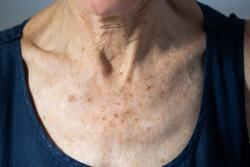 Neck of old senior citizen woman
