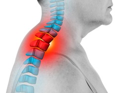 Neck pain, sciatica and scoliosis in the cervical spine isolated on white background, chiropractor treatment concept, painful area highlighted in red and blue