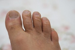 neglected male toes, fungus toes, fungal disease, calluses on toes