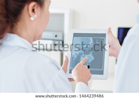 Neurologist and radiologist discussing scull x-ray of patient on tablet computer in medical office #1464239486