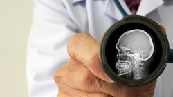 Neurologist doctor check and show film X ray radiograph of human bone skull represent brain test and neurological examination. Neurology and medical physical checkup concept.