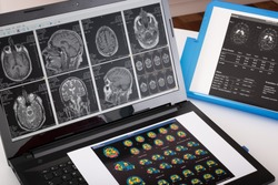 Neurology student while studying and consulting different medical reports of a brain exams. Doctor comparing spect and datscan test of a neurological patient to make a diagnosis. Brain pathology image