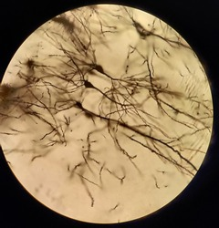 Neurons under a bright field microscope.