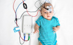 Newborn hearing screening and diagnosis at the hospital. Baby having hearing screening with special electrodes on his head and ear