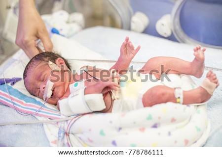 Newborn premature baby in the NICU intensive care Foto stock ©