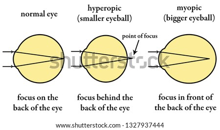 Normal eyesight and eyesight that needs to be corrected by wearing glasses