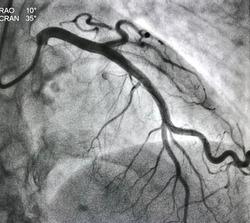 Normal left coronary artery angiogram.