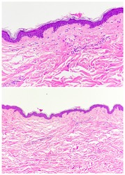 Normal skin: epidermis and dermis (magnification 200x in the upper and magnification 400x in the lower)
