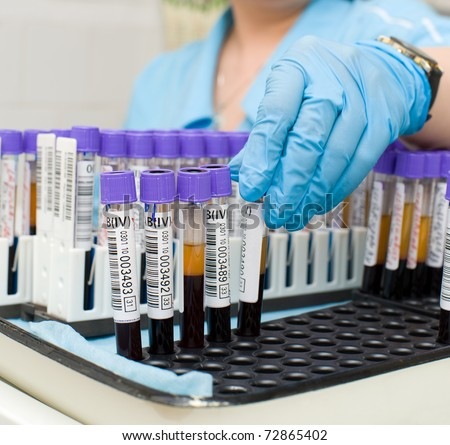 nurse arranges test tubes with blood on a tray - stock photo