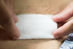 Nurse or Doctor hand treating the wound patient to clean the wound after stitches patients appendectomy surgery.