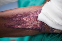 Nursing care for  patient  in  burn unit