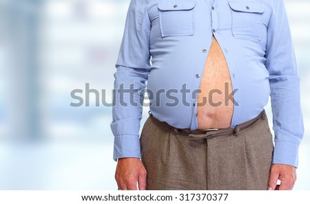 Obese man abdomen. Obesity and weight loss.
