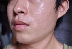 Oily and fair skin, wide pores of Southeast Asian, Myanmar or Chinese adult young man. Oily skin is the result of the overproduction of sebum from sebaceous glands.