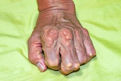 Old age and illnesses of pharmaceutical medicament severe gout in men suffering from joint pain, bone pain, gout ,arthritis ,arm, foot, knee, rheumatoid symptoms, Concept of abstract pain and despair.