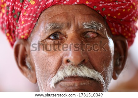 Old Indian man in long white mustache and wearing red turban suffering from eye problem. Cataract in eye. Loss of vision. Damaged one eye. Eye disease.