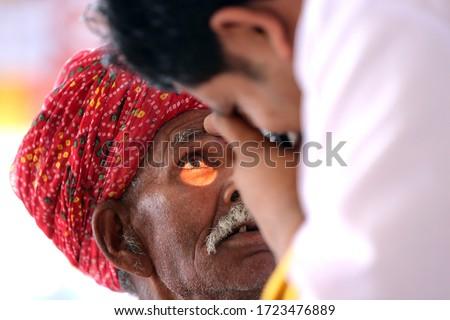 Old Indian man in Red turban from Rajasthan getting eyes tested. Eye camp. Eye patient. Weak eyesight. Eye Health. Eye examination by doctor. Healthcare to elderly.