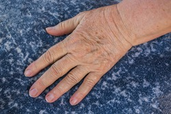 Old man's hand with wrinkles and pigmentation