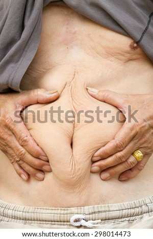 old man squeezing belly fat around belly button