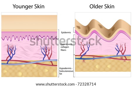 Old skin anatomy characterized by presence of age spots and wrinkles caused by atrophy of dermis (collagen fibers), epidermis, and blood supply - stock photo