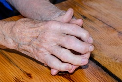 Old woman's sick, severely deformed hands on a wooden table. Rheumatoid arthritis, arthrosis, osteoarthritis cause severe pain and restrict movement in the joints. Autoimmune diseases.
