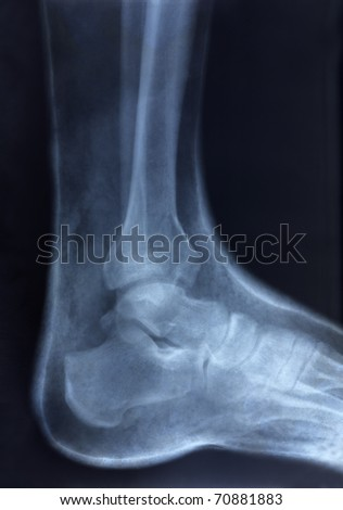 old x-ray image of human foot