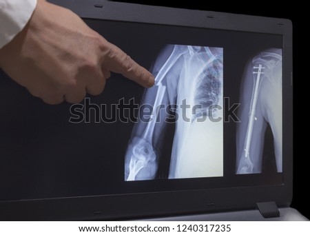 On the monitor screen is displayed an xray of fracture of a hand with the hand of a doctor pointing to a fracture. The second image on the screen is hand after operation with titanium screws.