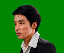 On the side of the man's face is full of acne, blemishes, blemishes, redness, pores, skin disease, wearing a full black body On a green background in close up