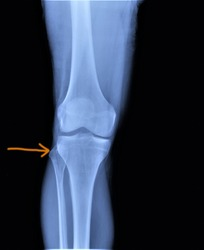 on the x-ray of the knee joint fracture of the head of the fibula, medical diagnosis, traumatology and orthopedics