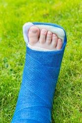 One blue gypsum foot of child on green grass