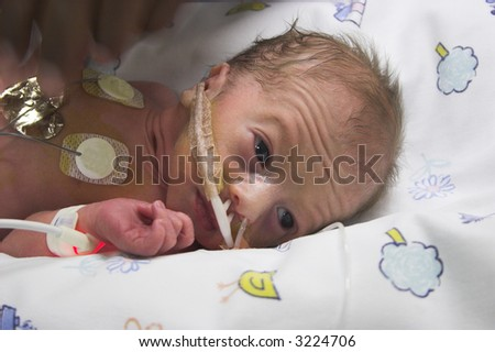 one day old premature baby boy in ICU