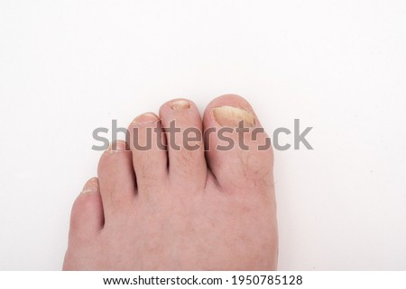 Onychomycosis is a fungal infection of the nail. Mycosis of the foot. Foot with affected nails on a white background close-up. Scary toenails.