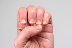 Onychomycosis or fungal nail infection on damaged nails after gel polish, onychosis. Longitudinal ridging nails with psoriasis. Nail diseases, health and beauty problem