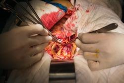 open abdominal aortic aneurysm