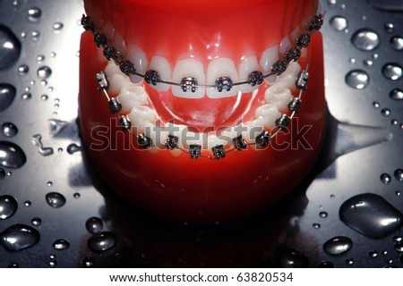 Open dentures with braces , water drops background,dramatic lighting