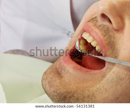 open mouth before oral inspection mirror near by