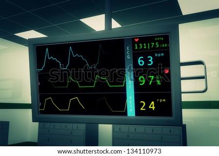 Operation Room EKG Monitor