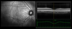 Ophthalmic test - OCT optical coherence tomography measurement. SLO Scan view of the macula in retina with vessels