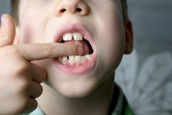 oral cavity of small patient, length of frenum of the tongue, boy, kid performs articulation exercises for mouth, concept of speech disorders, correction