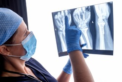 Orthopaedic surgeon studying a x-ray of a broken radius bone in theatre after correctional surgery.